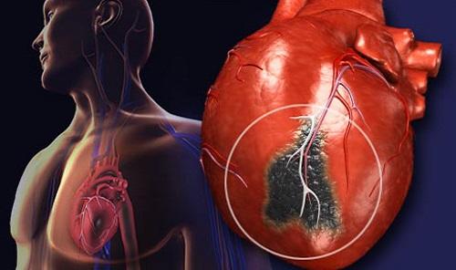 توضیحاتی کوتاه در مورد حمله قلبی،ایست قلبی،سکته مغزی